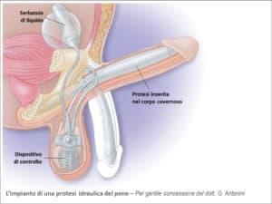 Impianto-Protesi-Peniena