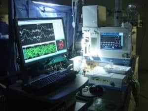monitoraggio-neurofisiologico-intraoperatorio